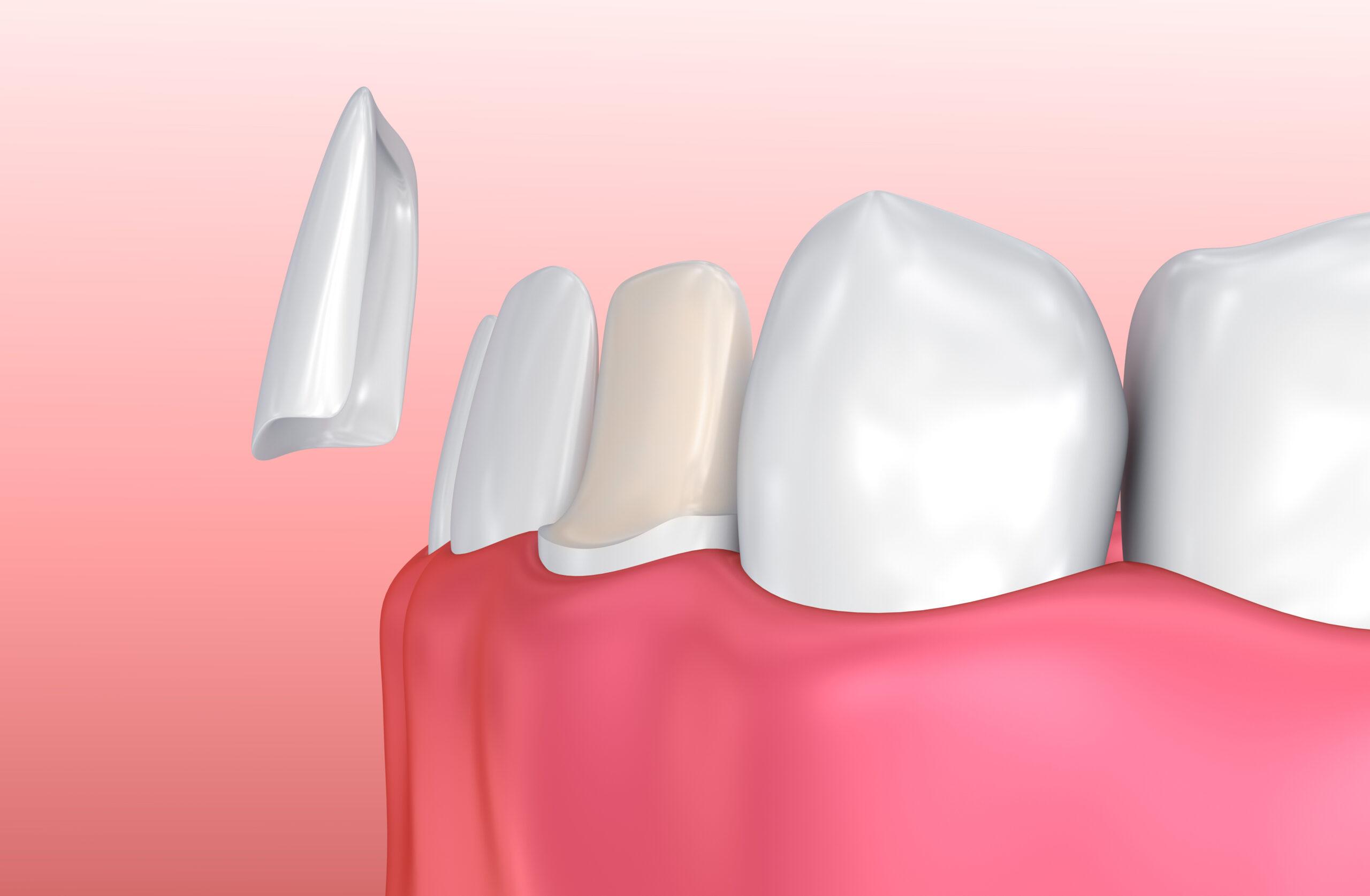 faccette-dentali-estetiche-Daina