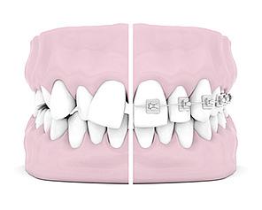 ortodonzia-fissa-tradizionale-centro-daina-bergamo