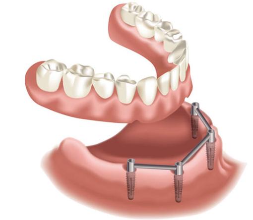 protesi-totale-a-appoggio-implantare